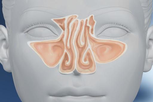Δυσχέρεια Ρινικής Αναπνοής