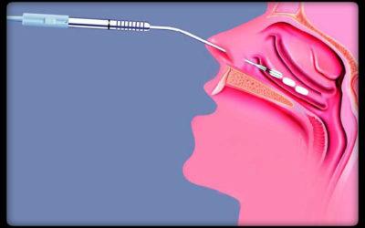 Χειρουργική Κάτω Ρινικών Κόγχων